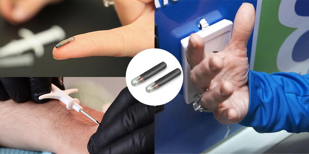 NFC-Implantat-Tag